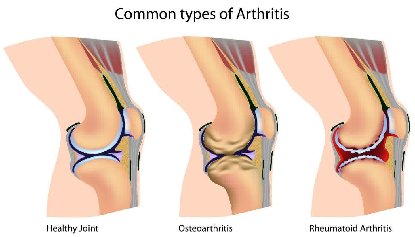 Osteoarthritis In Knees
