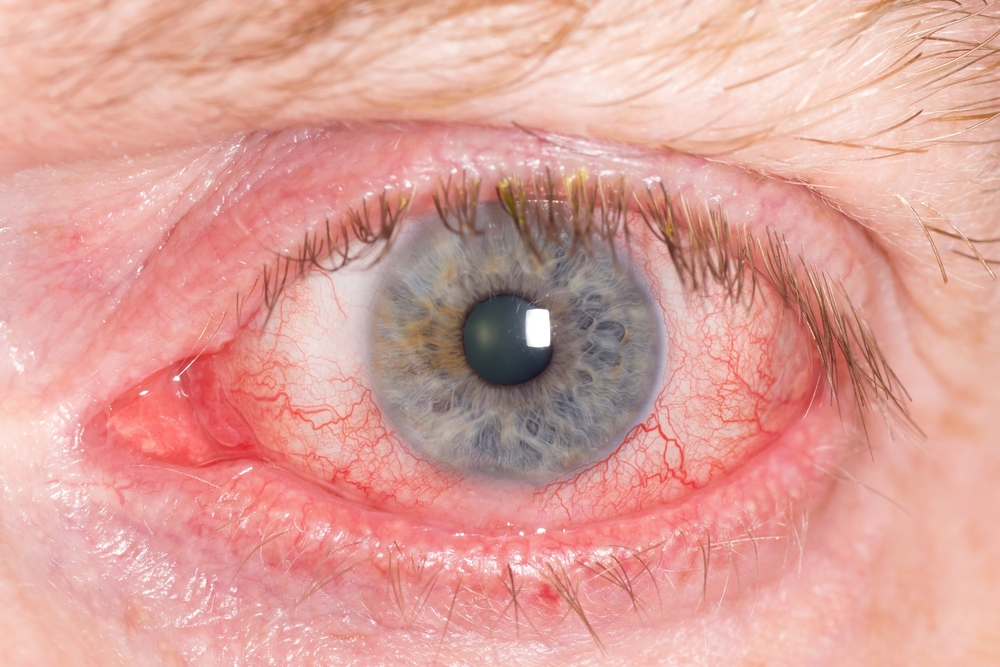 ra eye pain