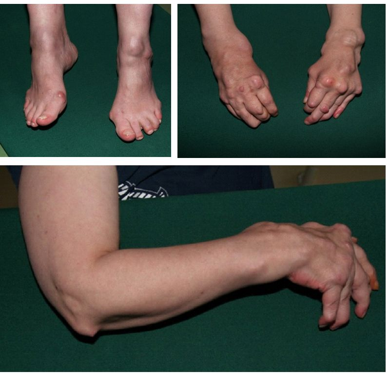 causes and impacts of rheumatoid arthritis ra Rheumatoid arthritis (ra) is the most common type of autoimmune arthritis it is caused when the immune system (the body's defense system) is not working properly ra causes pain and swelling in the wrist and small joints of the hand and feet treatments for ra can stop joint pain and swelling.